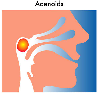 adenoids