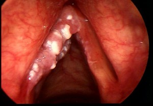 larynx_cancer2
