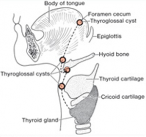 thyroid_cyst